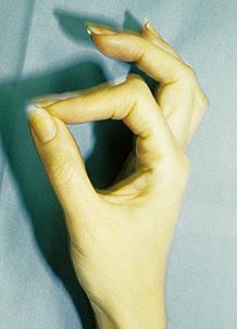 Anterior Interosseous Nerve Syndrome