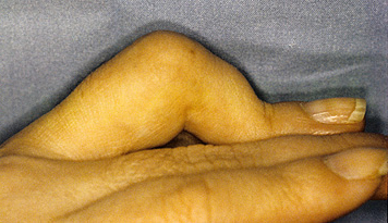 contracture-finger