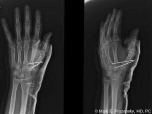Bennett Fracture-Dislocation 2