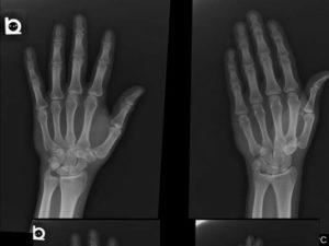 Bennett Fracture-Dislocation 1