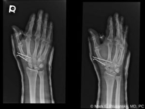 Bennett Fracture-Dislocation 4