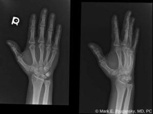 Bennett Fracture-Dislocation 3