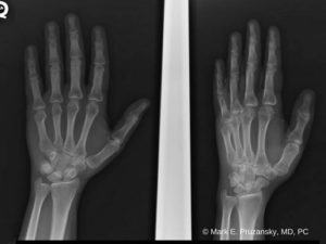 Boxer's Fracture 1