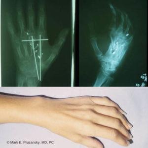 Hand Surgery 1