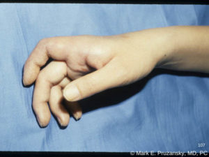Metacarpal-Phalangeal Joint (Fracture) Dislocation 1