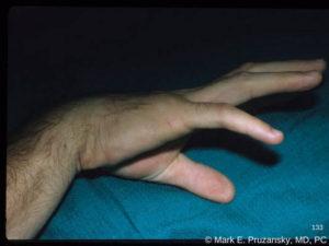 Metacarpal Fractures 2