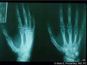 Metacarpal Fractures 1