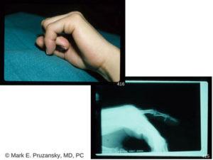 Phalangeal Fractures 2