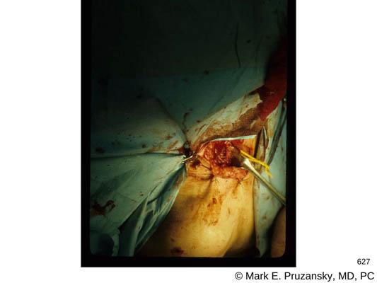 Nerve Surgery 4