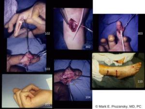 Finger Flexor Tendon Rupture 1