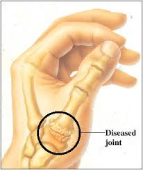 Basal Joint Arthritis 1