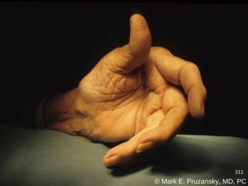 finger-deformity-due-to-rheumatoid-arthritis