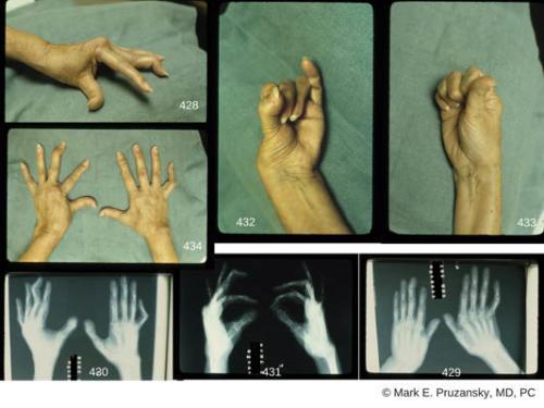hand-deformities-rheumatoid-arthritis