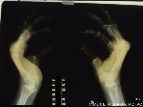 osteoarthritis-superimposed-on-rheumatoid-arthritis-of-the hands