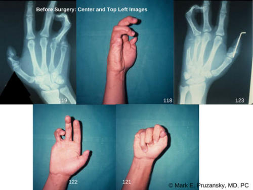psoriatic-arthritis-traumatic-loss-of-fifth-digit