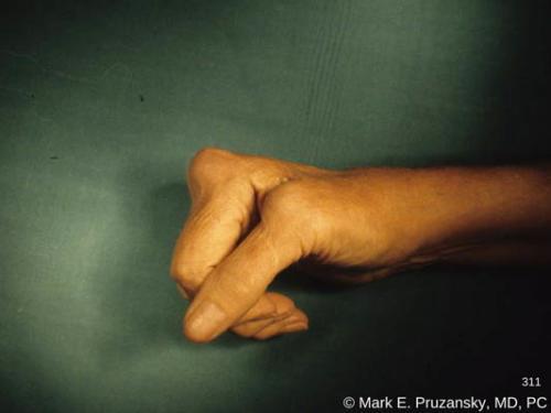 rheumatoid-arthritis-finger-deformity