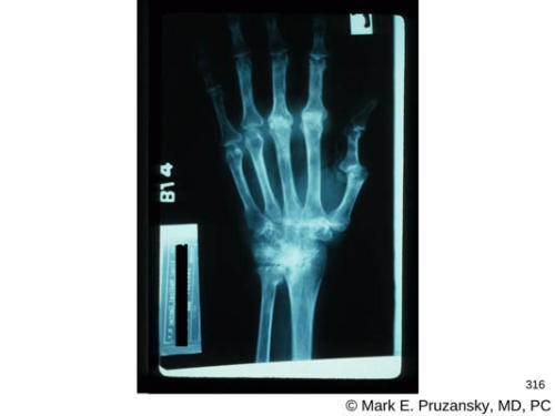 silastic-wrist-replacement-surgery-x-ray