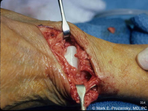 silastic-wrist-replacement-surgery